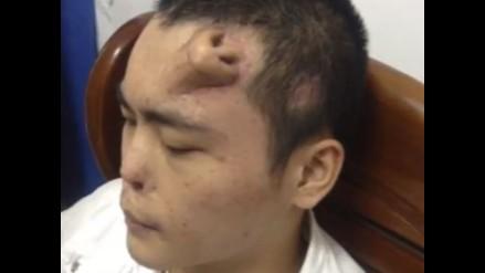 Médicos chinos hacen crecer nariz en la frente de un paciente