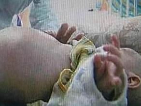 Niño chino de dos años llevaba en su interior a su gemelo no nacido