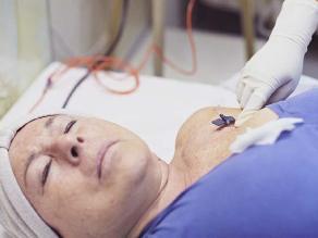Cáncer de mama incrementa riesgo de sufrir otros tumores