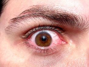 Disminución o pérdida de la visión, señal de retinopatía diabética