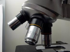 Detectan cáncer de páncreas en cinco minutos