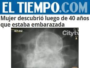Colombia: Mujer descubre que estaba embarazada después de 40 años