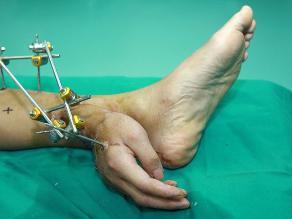 Médicos salvan mano a chino injertándosela en su tobillo