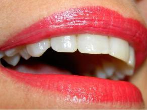 ¿Es una buena opción el blanqueamiento dental?