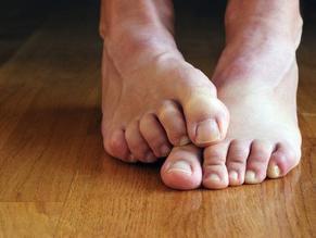 Casos de hongos en pies y uñas se triplican en el verano