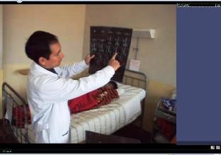 Extraen tumor renal gigante a niño de 9 años en Cusco