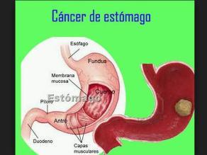 Más del 90% de cáncer de estómago son detectados en etapa avanzada en Perú