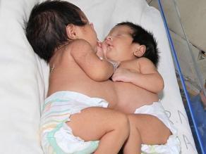 Mueren las siamesas nacidas en hospital de Paraguay