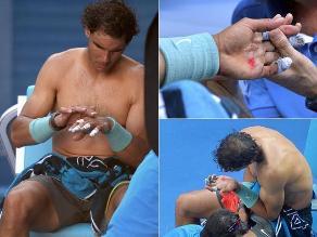 Rafael Nadal llega a duelo ante Federer con una serie de ampollas