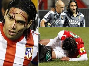 Conoce las lesiones que Radamel Falcao padeció en su carrera futbolística