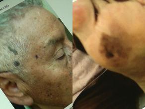 Huancayo: 5 de cada 100 pacientes es sospechoso de cáncer de piel
