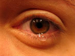Las lágrimas son buenas para proteger nuestros ojos