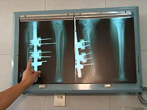 Operan a adolescente para recuperar tamaño de su pierna