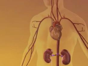 Tres millones de peruanos padecen enfermedad renal
