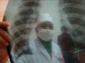 Ucayali ocupa el segundo lugar en casos de tuberculosis
