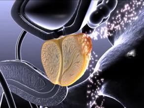 Reducir la próstata sin cirugía ofrece mejores resultados