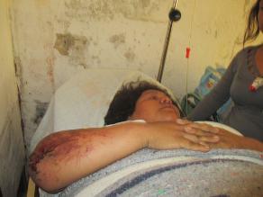 Chimbote: universitario intentó asesinar a gestante