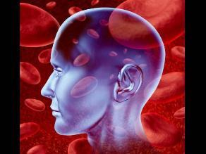 Terapia de rehabilitación personalizada después de un derrame cerebral