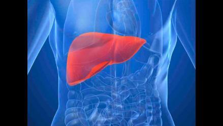 Hepatitis es la causa común del cáncer de hígado