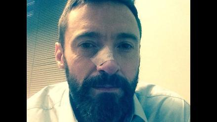 Hugh Jackman es tratado por segunda vez de un carcinoma en la nariz