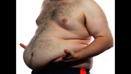 Recomendaciones para prevenir el 'hígado graso'