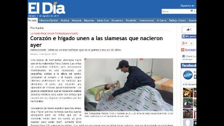 Boliviana da a luz a siamesas unidas por el corazón e hígado