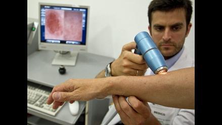 EEUU: fármaco contra melanoma despierta esperanza entre expertos en cáncer