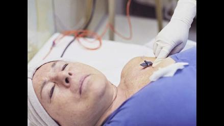 Seis señales que pueden indicar un cáncer en mujeres