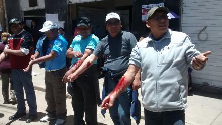 Puno: administrativos y asistenciales de EsSalud se desangraron