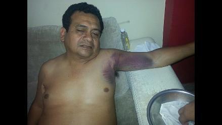 Piura: ´He vuelto a nacer´ dice Tony Rosado tras aparatoso accidente