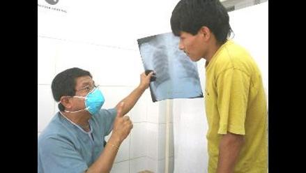 Arequipa: hospitales del Minsa desabastecidos de pruebas para diagnosticar TBC