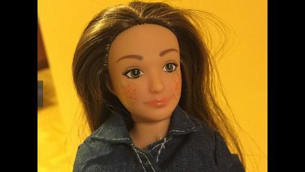 Lammily, la muñeca que tiene acné, celulitis y lunares