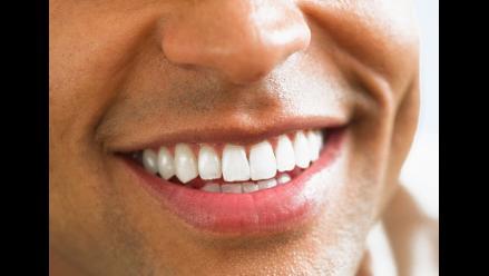 ¿Cómo conseguir una sonrisa brillante y encantadora?