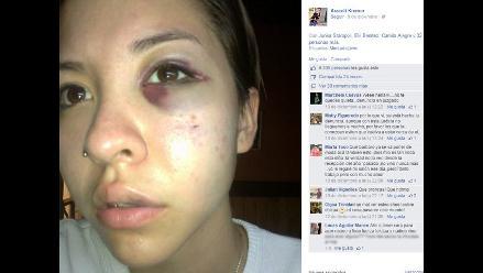 Facebook: Mujer denuncia con fotos brutal golpiza de su exnovio