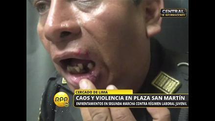 Ley jóvenes: manifestantes hirieron labio y volaron dientes a coronel PNP