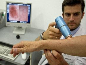Al año mueren unas 300 personas por cáncer de piel en Perú