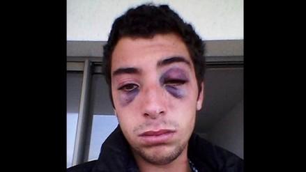 Facebook: Chileno denuncia brutal golpiza por parte de exnovia