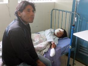 Ayacucho: perro rabioso desfigura a menor en Huanta