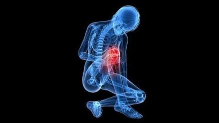 La osteoporosis es considerada una epidemia silenciosa del siglo XXI