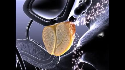 Examen de próstata da un diagnóstico de un 80% de efectividad