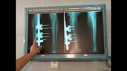 Mitos sobre la osteoporosis