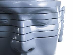 Trasplante de cabeza: ¿cómo se haría esta insólita operación?