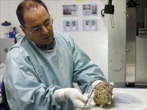 Investigación mexicana permite detectar en piel humana Alzheimer y Parkinson