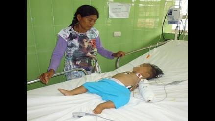 Amazonas: bebé que fue mordida por serpiente será atendida en Chiclayo