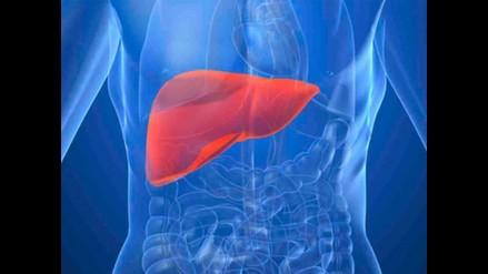 Hepatitis C: solo entre 3 y 5% de pacientes reciben tratamiento en países ricos
