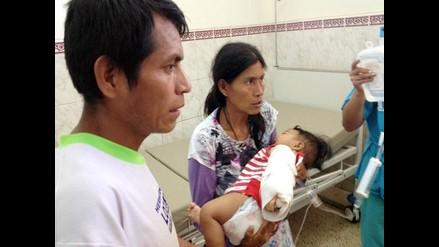 Chiclayo: bebé mordida por serpiente se encuentra en observación