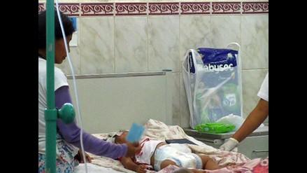 Chiclayo: amputaron brazo izquierdo de bebé mordida por serpiente