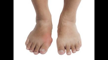 Gota: dolorosa enfermedad que ataca a las articulaciones