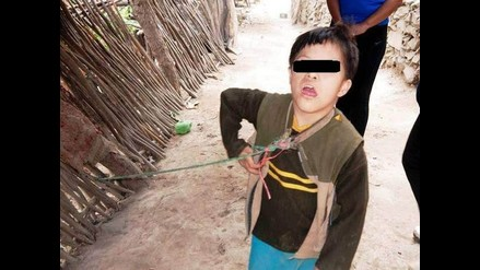 Ascope: hallan a niño con síndrome de Down amarrado en cerco de su casa