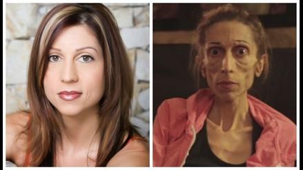YouTube: Actriz con anorexia pesa 20 kilos y pide que no la dejen morir